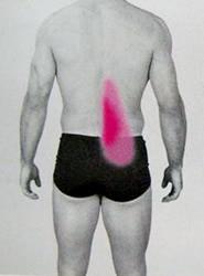 腸腰筋の関連痛
